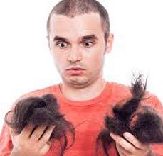 perdida de cabello en hombres