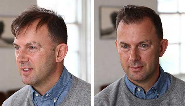 Cómo peinar a los hombres de cabello delgado